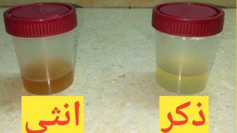طريقة معرفة نوع الجنين بالكلور بالصور ترند السعودية
