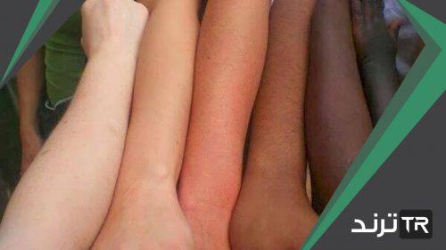 الصبغة التي تكسب الجلد لونه